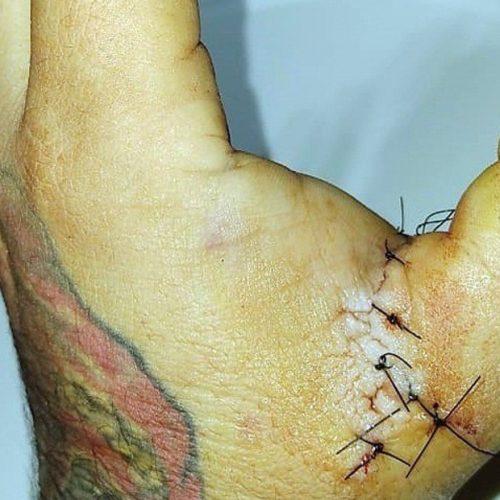 Padre de una joven atacó con un cuchillo al hombre que tatuó a su hija sin su consentimiento