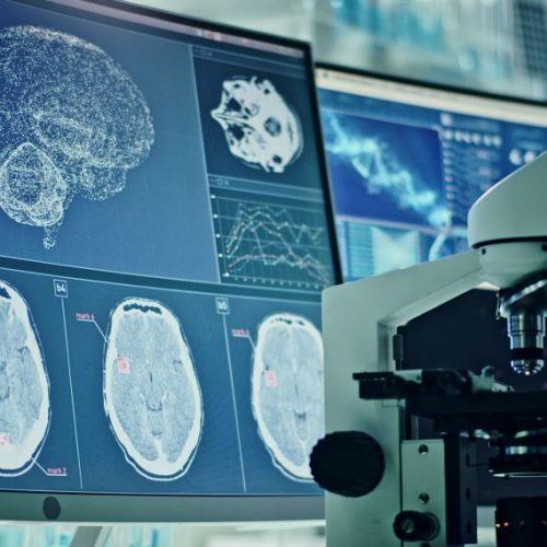 Descubren gen en común entre el covid-19 y el Alzheimer